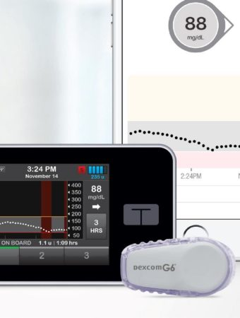 FDA dopuściło do obrotu system zamkniętej pętli Tandem Diabetes